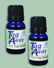 tag away skin tag remover reviews